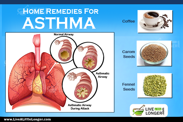 Eosinophilic asthma: Symptoms, diagnosis, and treatment